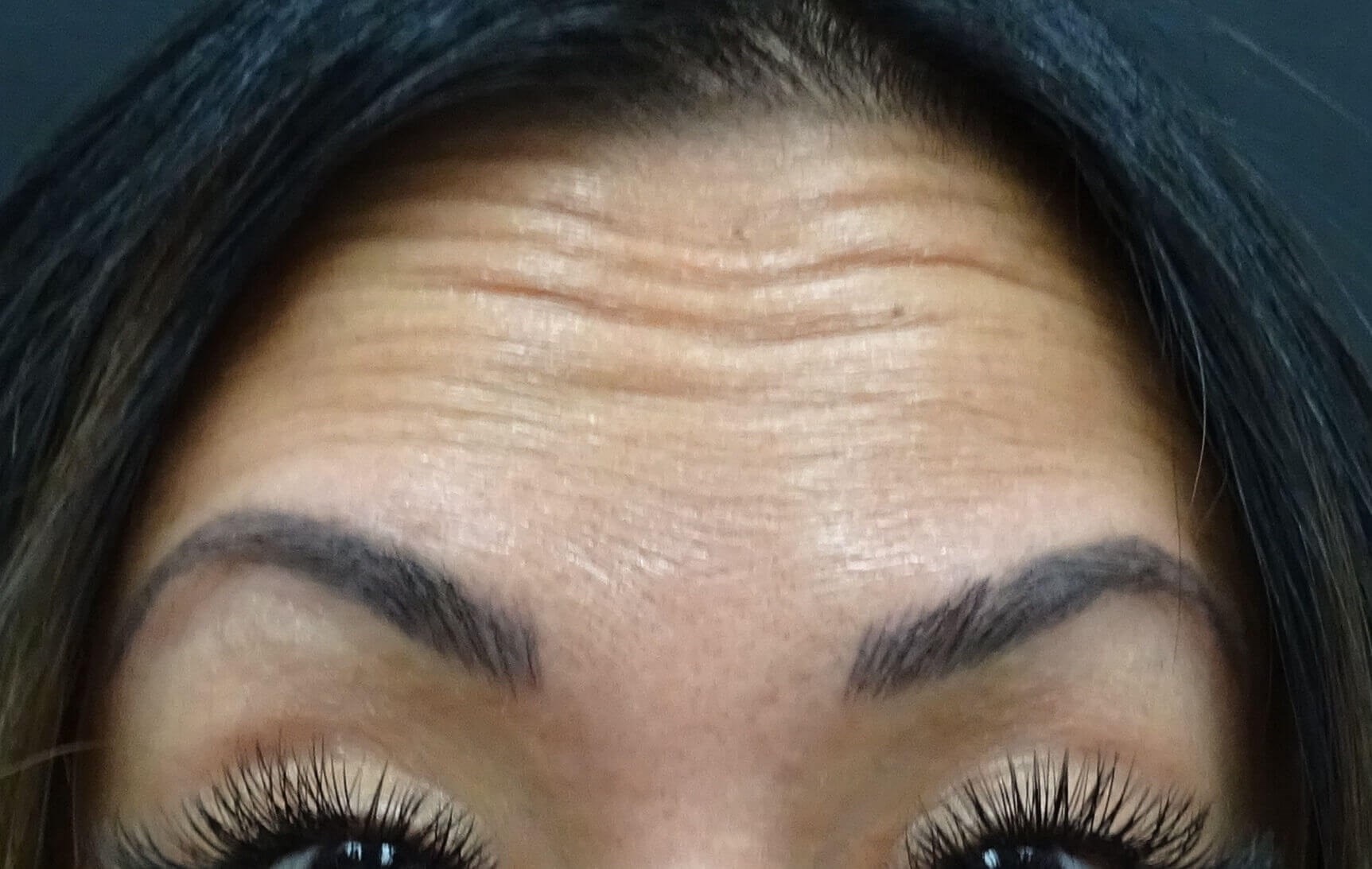 Las Vegas Botox for forehead Before Botox & Dr. Lee