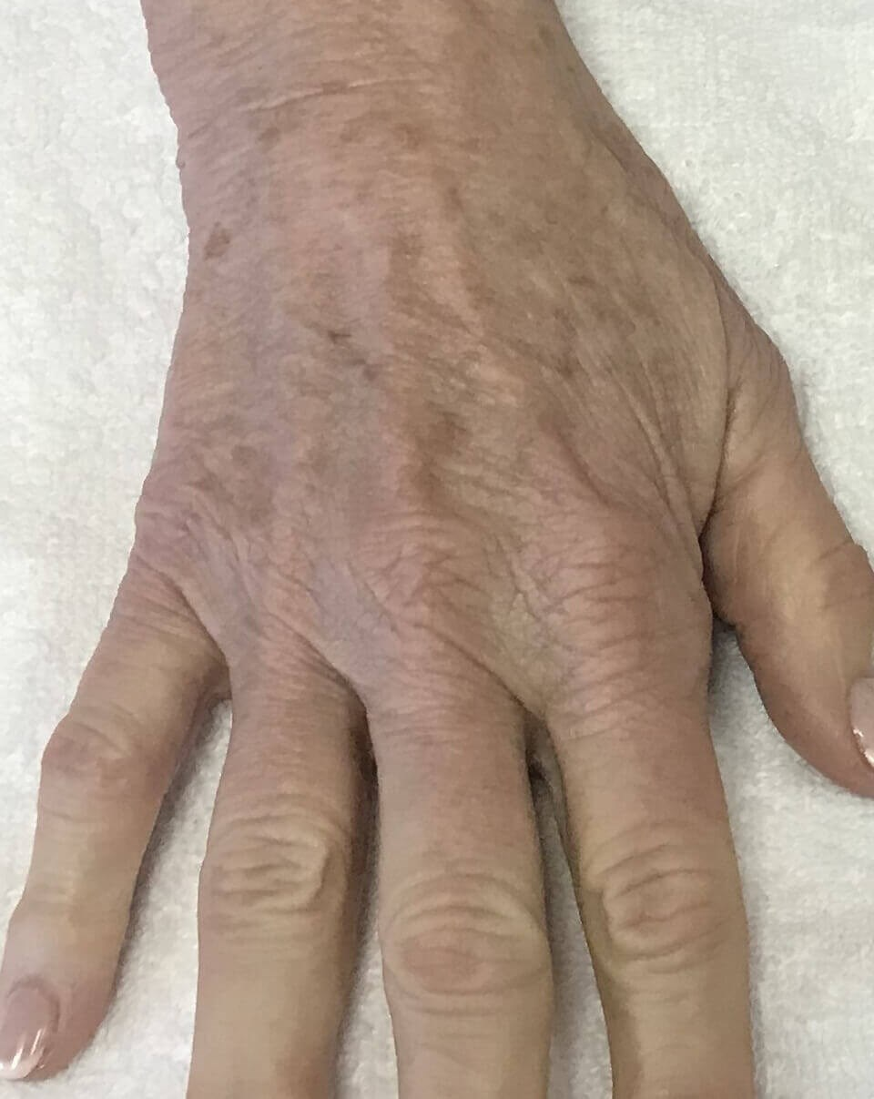 Peels make hands look younger Hand after 2 Peel treatments