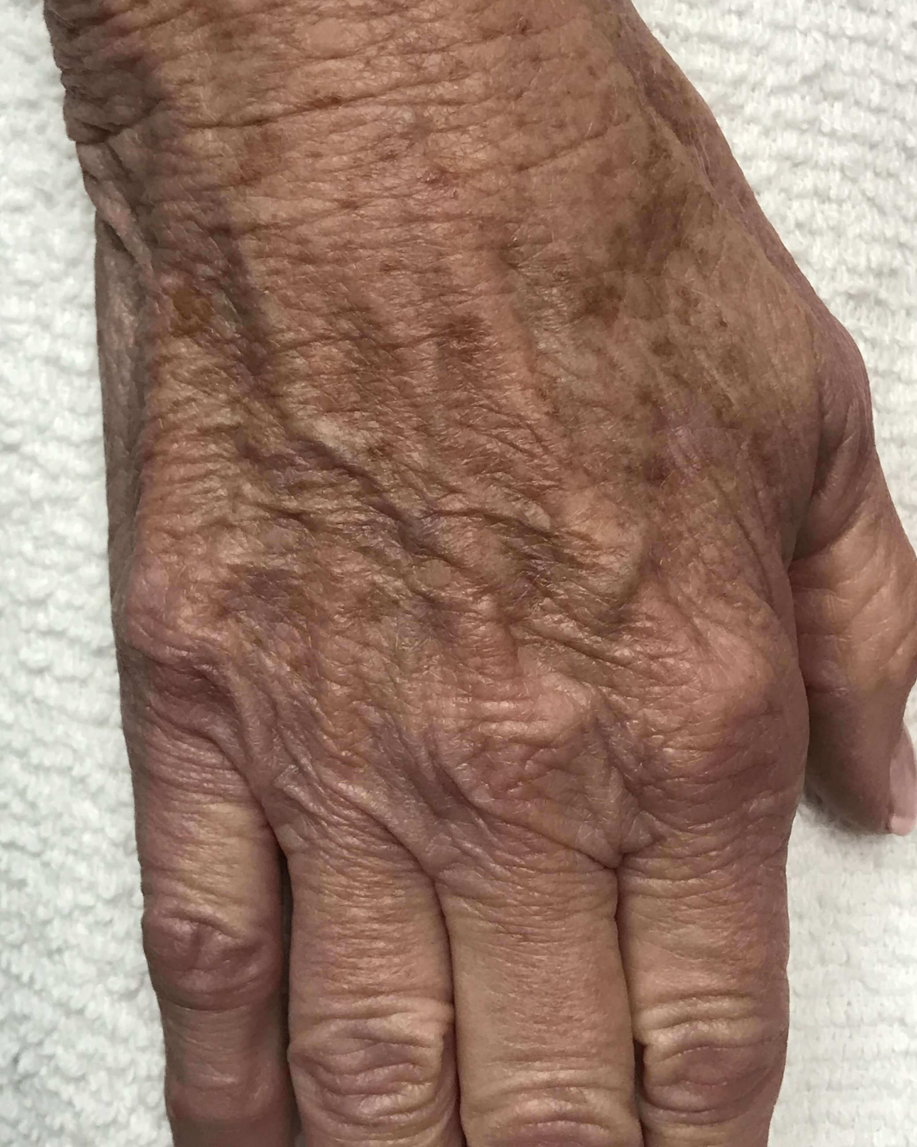Peels make hands look younger Right hand before Peel
