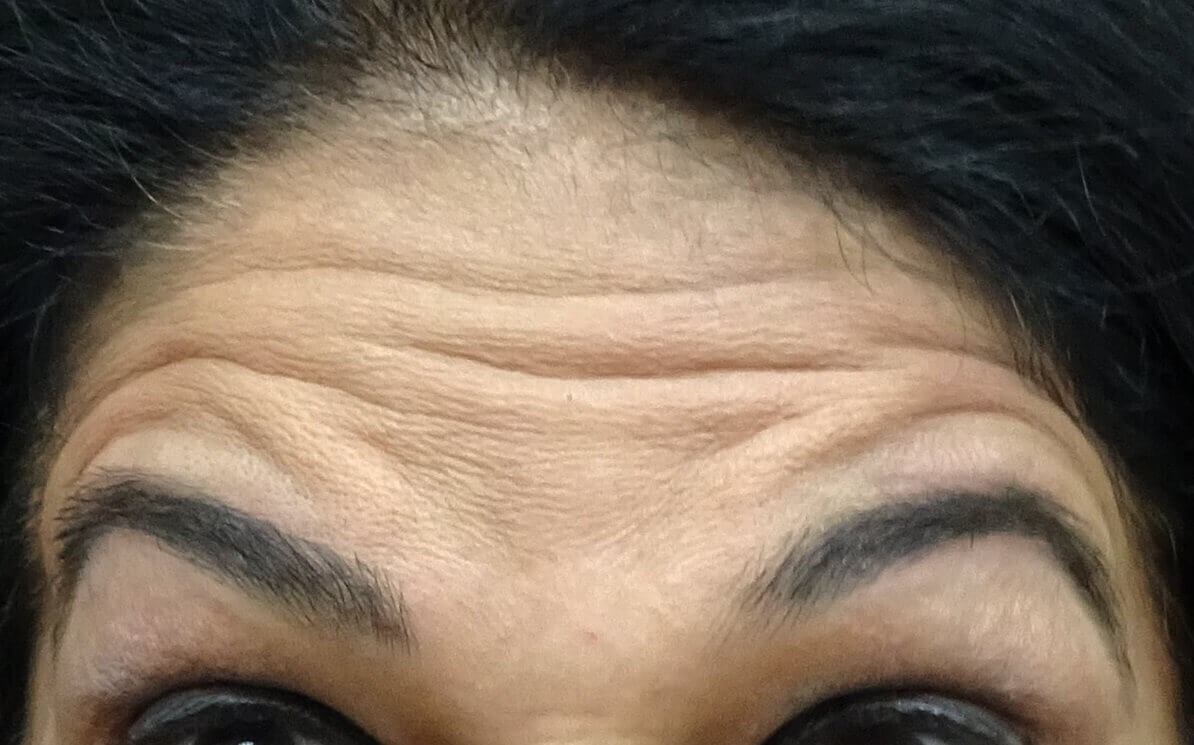 Botox for Las Vegas Patient Before Botox & Dr. Lee