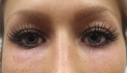 Fix tired eyes in Las Vegas After Restylane