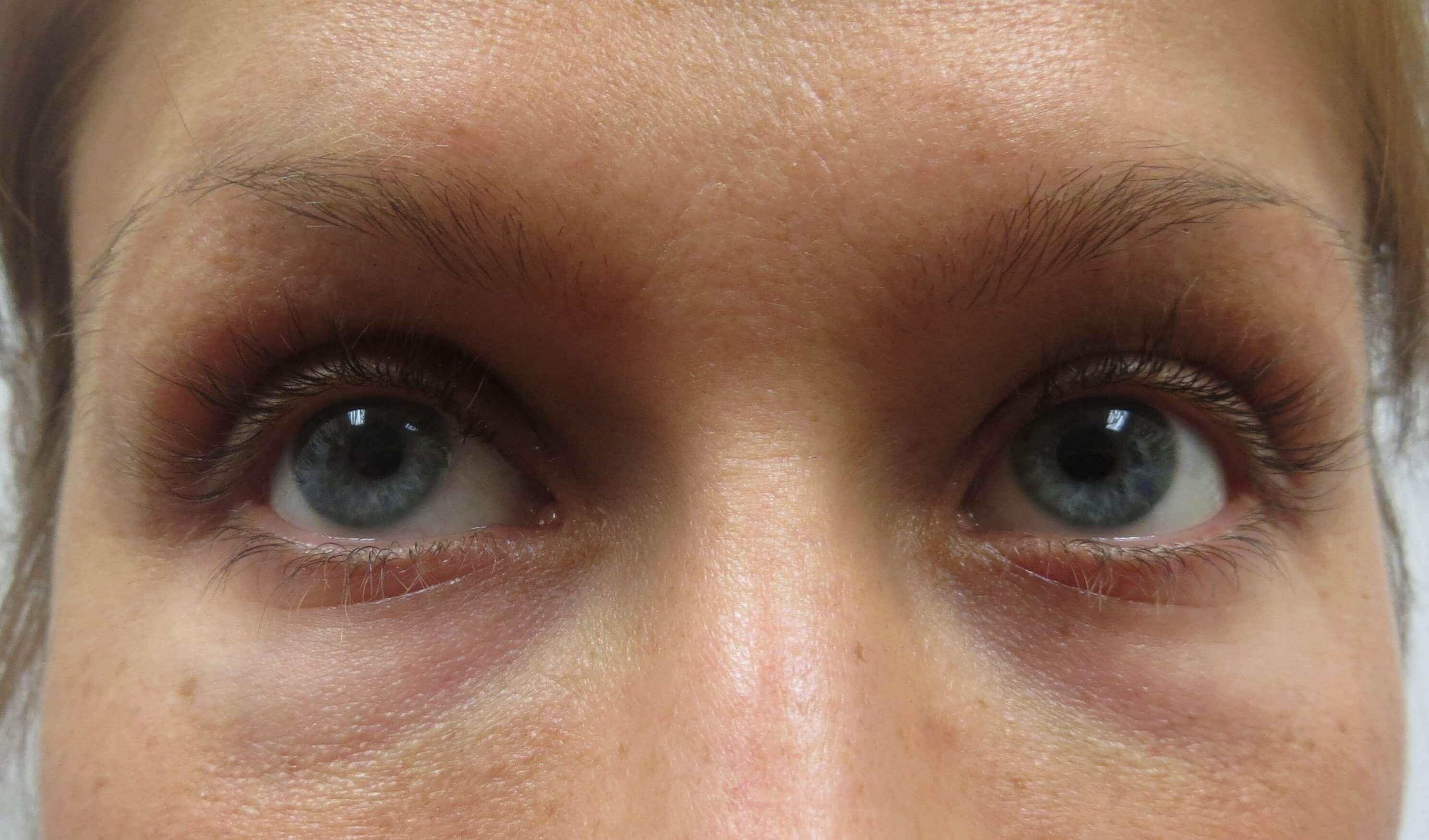 Fix tired eyes in Las Vegas Before Restylane