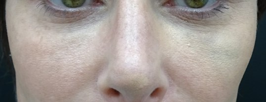 Juvederm Voluma in Las Vegas After Juvederm