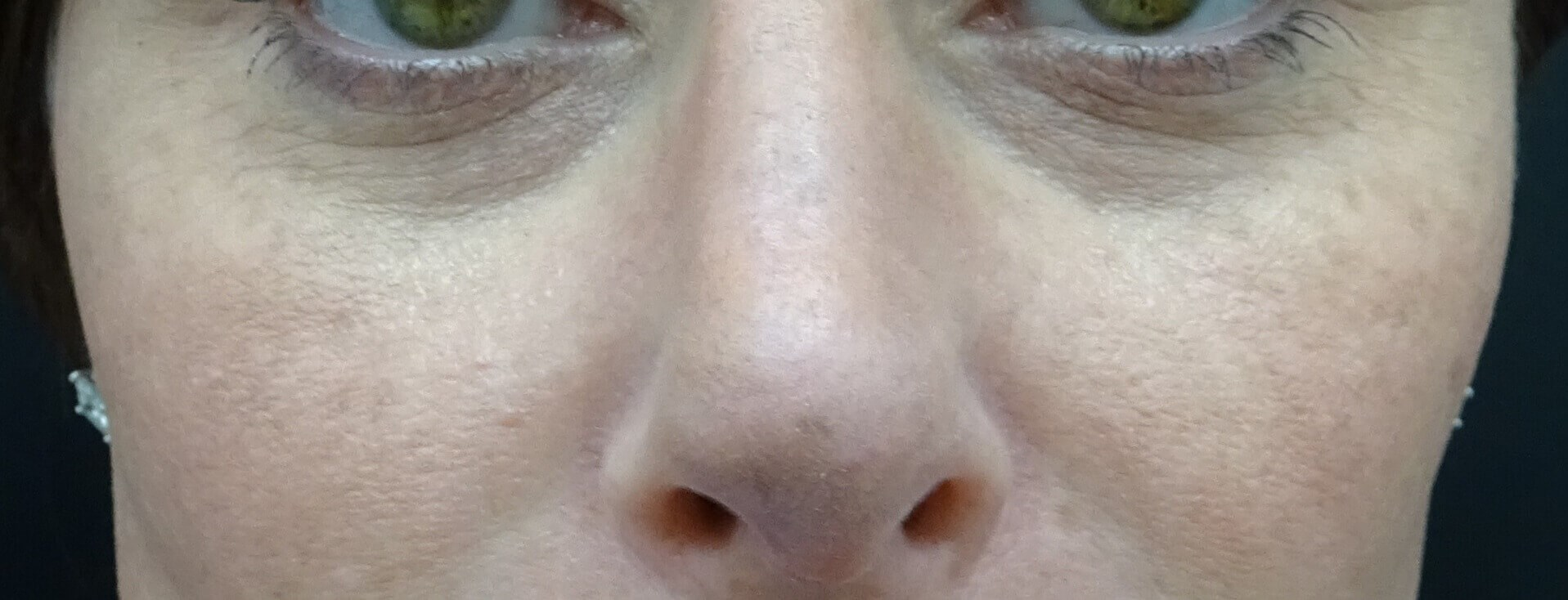 Juvederm Voluma in Las Vegas Before Juvederm