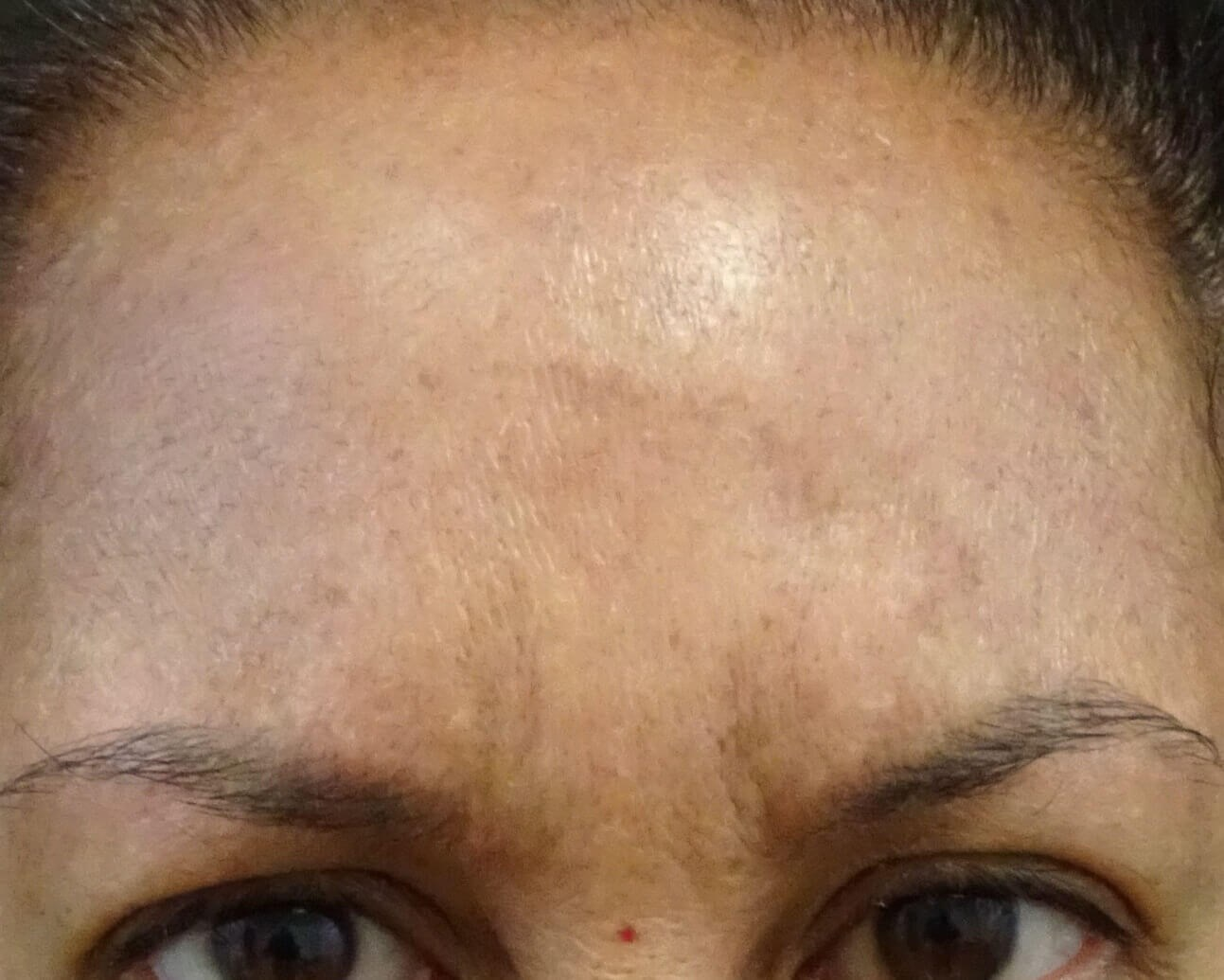 Botox Las Vegas - frown lines After Botox