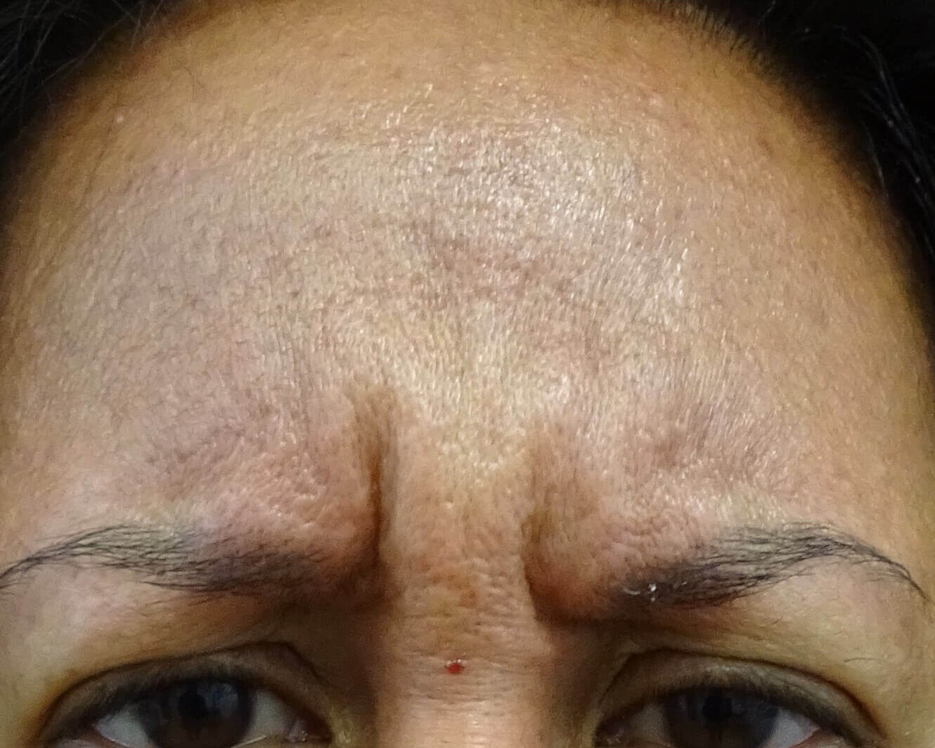 Botox Las Vegas - frown lines Before Botox