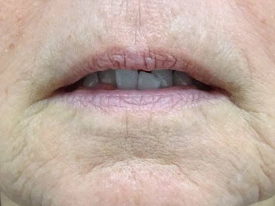 Vegas Lips & Juvederm Volbella Before Dr. Lee & Volbella