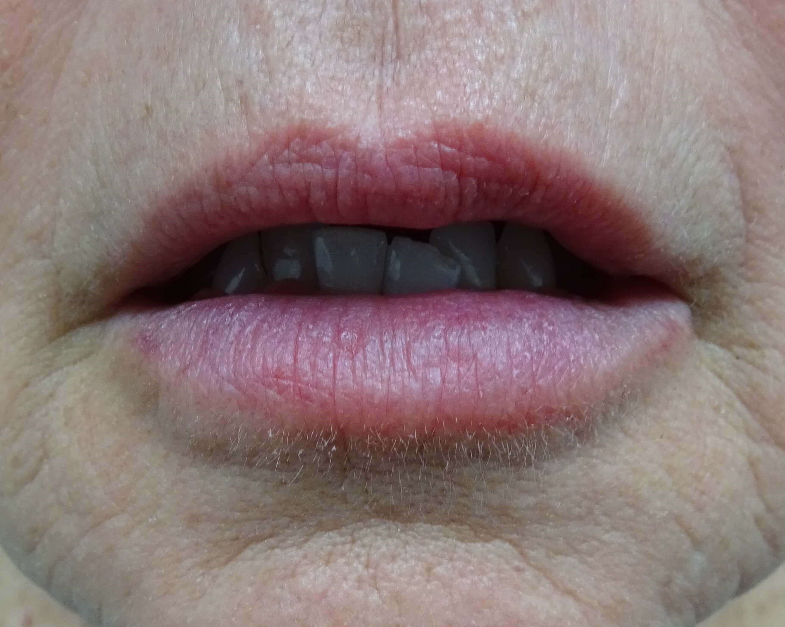 Vegas Lips & Juvederm Volbella After Dr. Lee & Volbella