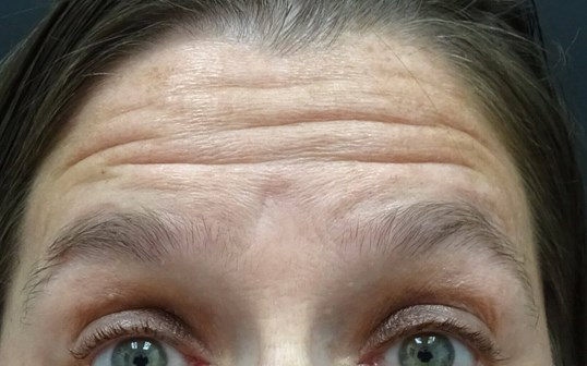 Forehead Botox in Las Vegas Forehead Before Botox