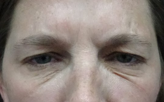 Frown Line Botox in Las Vegas Frown Lines After Botox