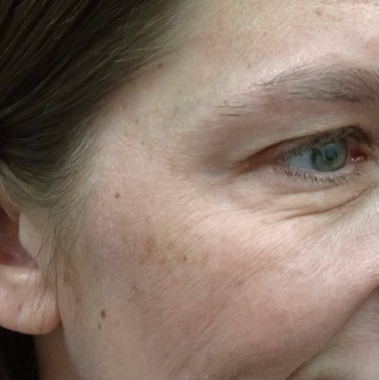 Botox - Crows Feet Las Vegas After Botox & Dr. Lee