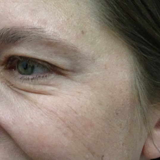 Crow's Feet Botox in Las Vegas Crows Feet After Botox