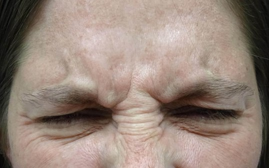 Frown Line Botox in Las Vegas Frown Lines Before Botox