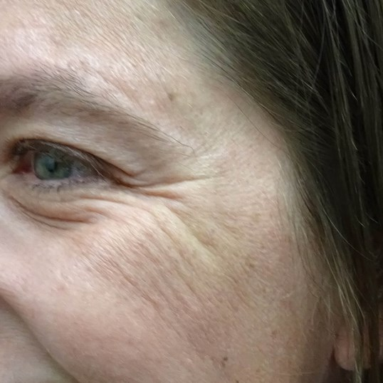 Crow's Feet Botox in Las Vegas Crows Feet Before Botox