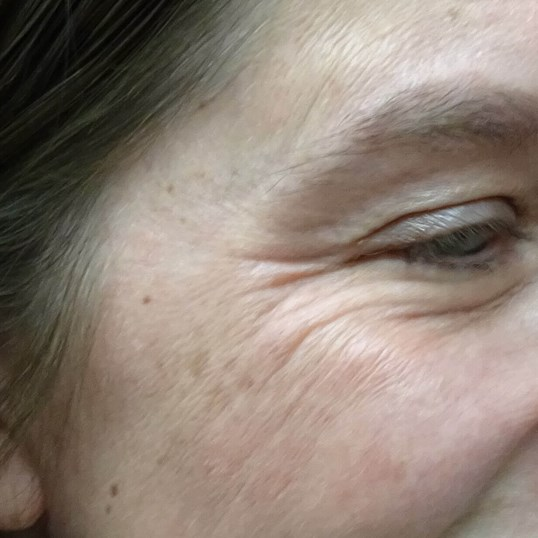Botox - Crows Feet Las Vegas Before Botox & Dr. Lee