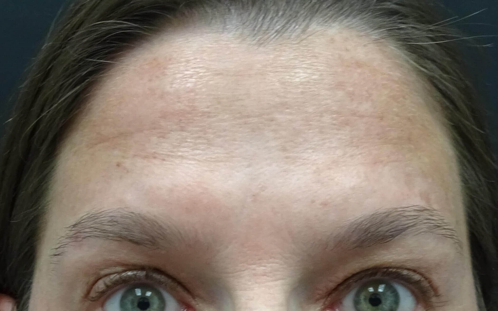Forehead Botox in Las Vegas Forehead After Botox