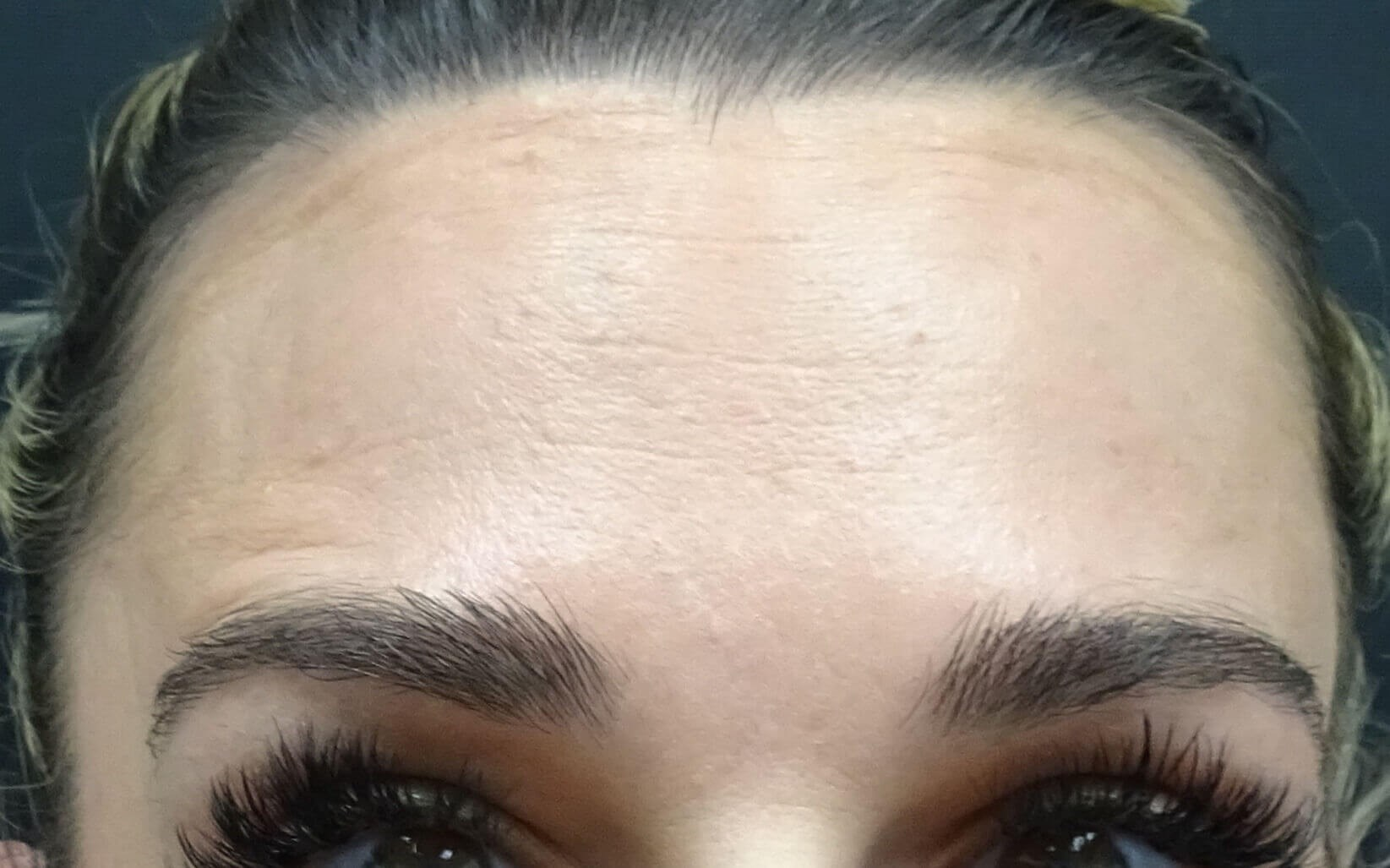 Botox for Las Vegas Patient After Botox & Dr. Lee