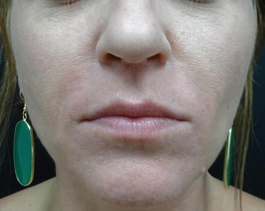Lose the LInes - Juvederm LV After Juvederm