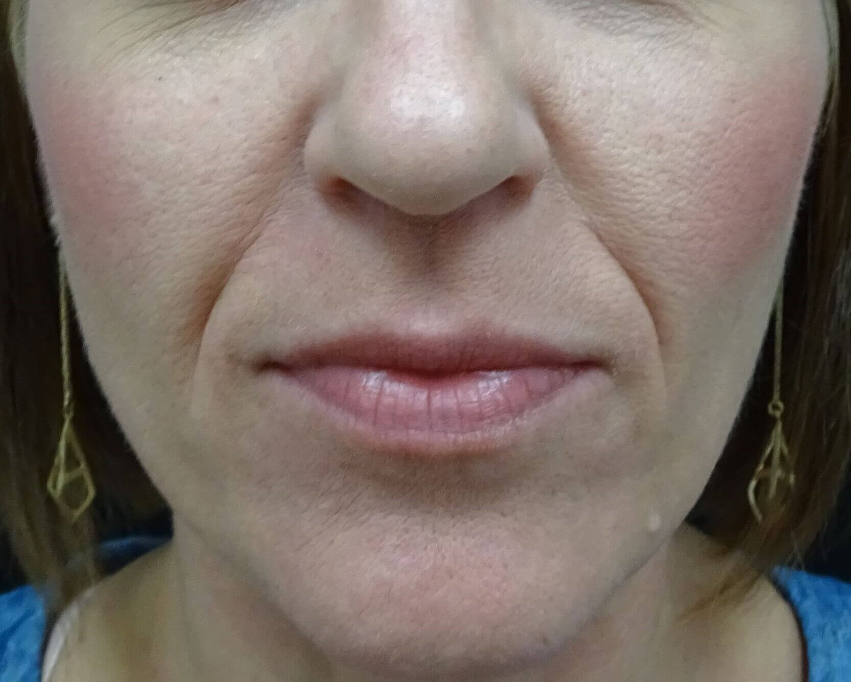 Lose the LInes - Juvederm LV Before Juvederm
