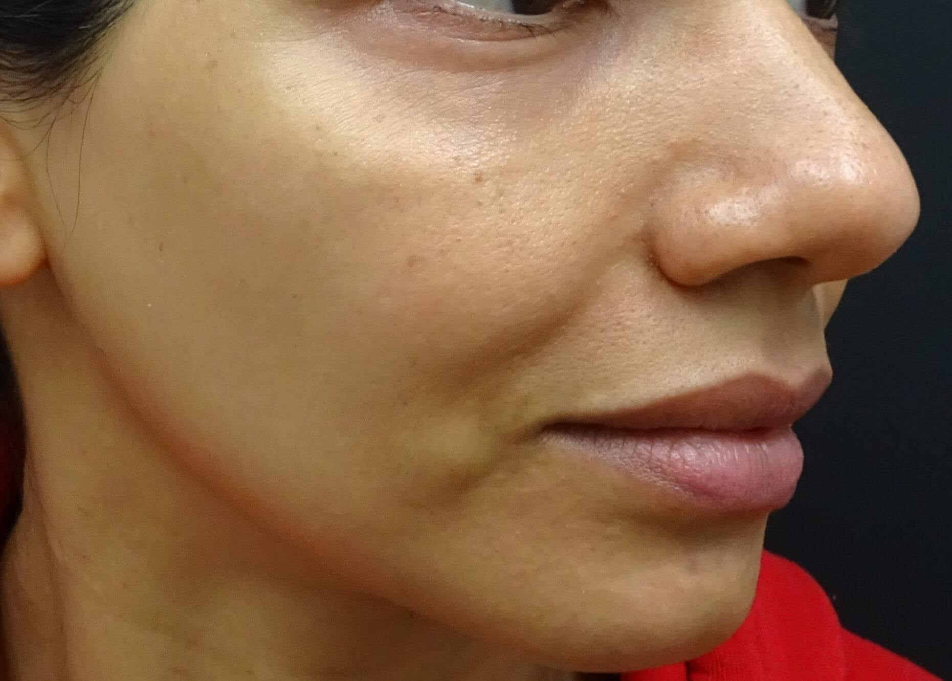 Side View Before Restylane & Juvederm