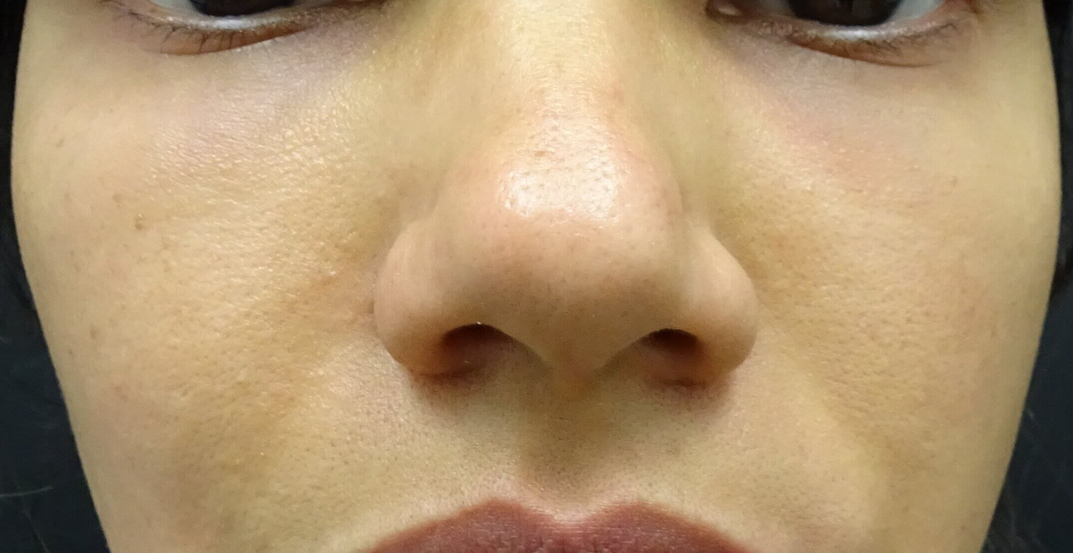 Restylane & Juvederm in Vegas 2 Days After Restylane