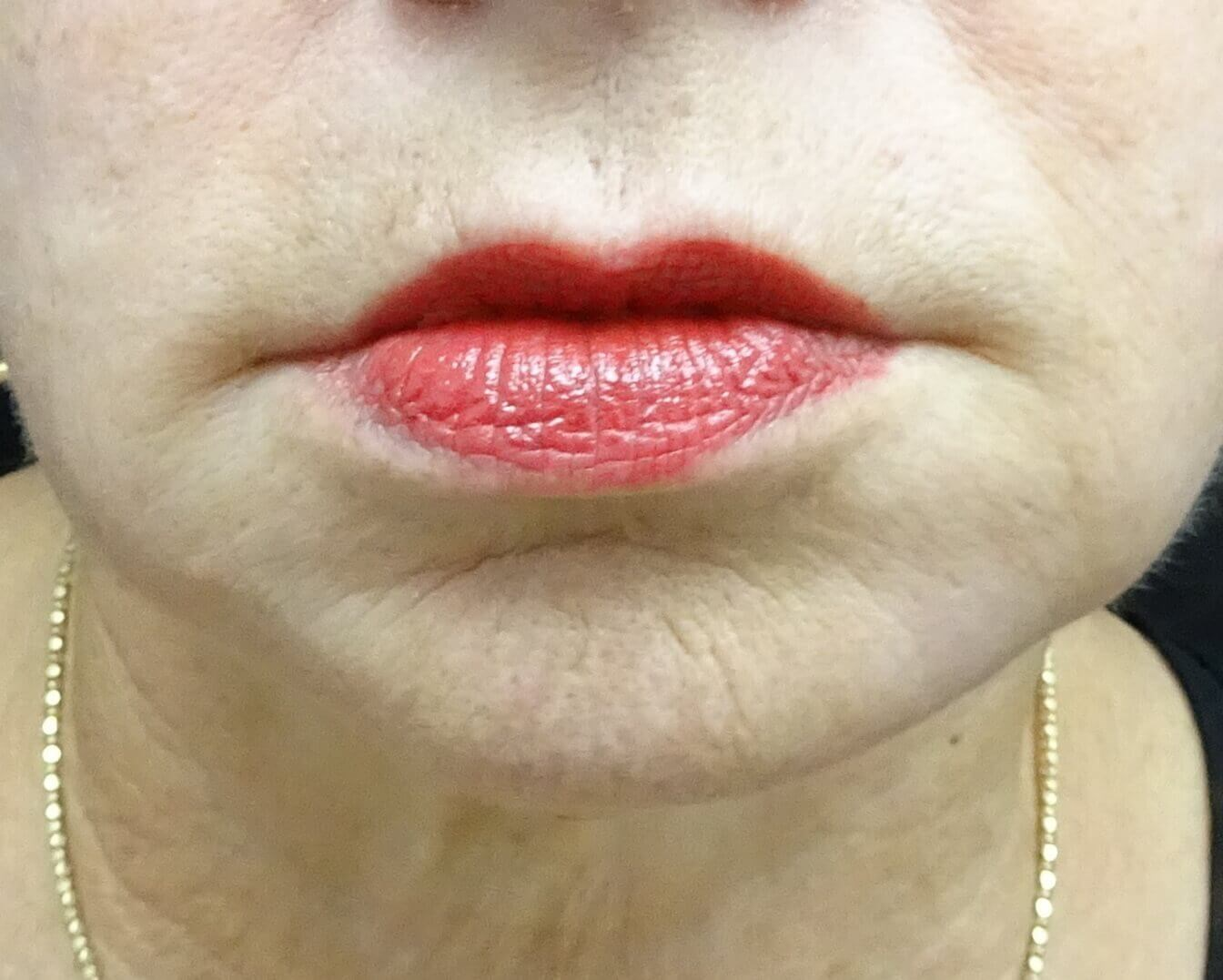 Las Vegas Juvederm for lines After Juvederm with Dr. Lee