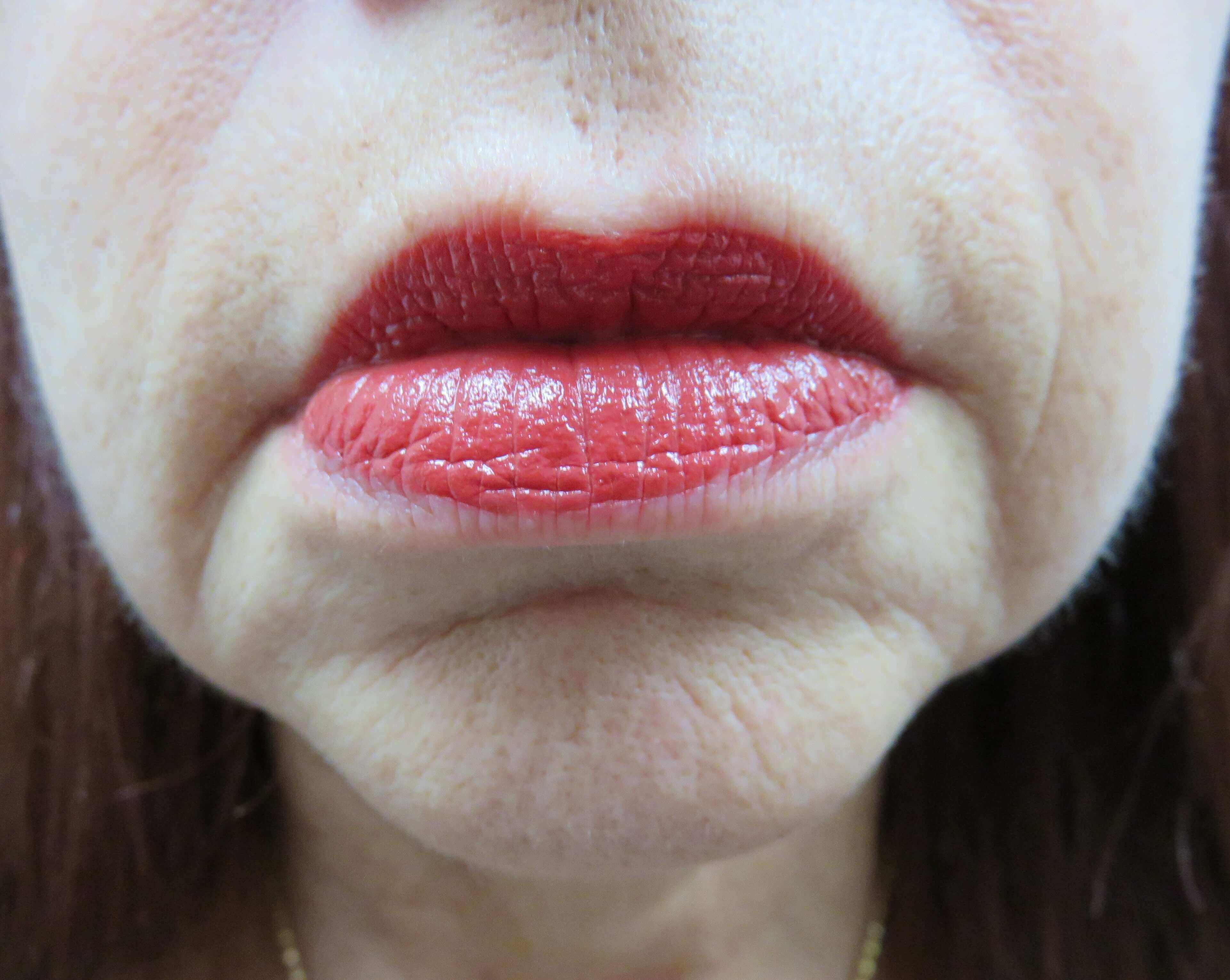 Las Vegas Juvederm for lines Before Juvederm with Dr. Lee