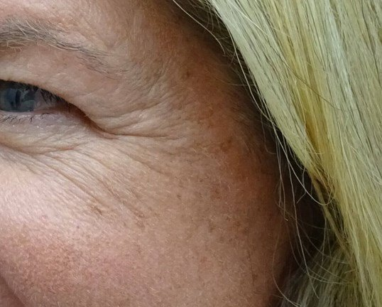 Botox for Crows Feet Before Botox