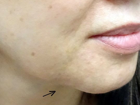Juvederm in Las Vegas Before Juvederm & Dr. Lee