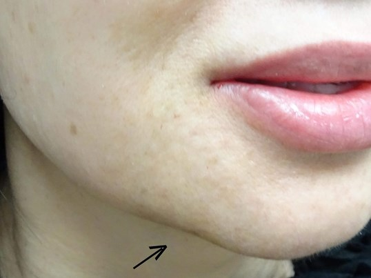 Juvederm in Las Vegas After Juvederm & Dr. Lee
