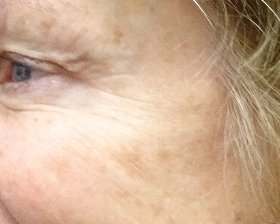 Botox for Crows Feet After Botox