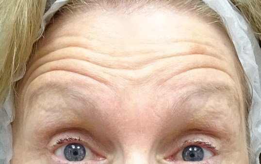 Botox Las Vegas - Forehead Before Botox